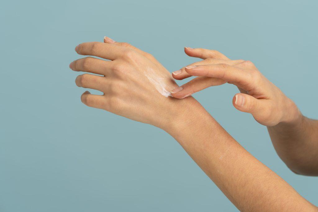 woman-applying-protective-cream-on-dry-skin-of-han-8UPQS5E